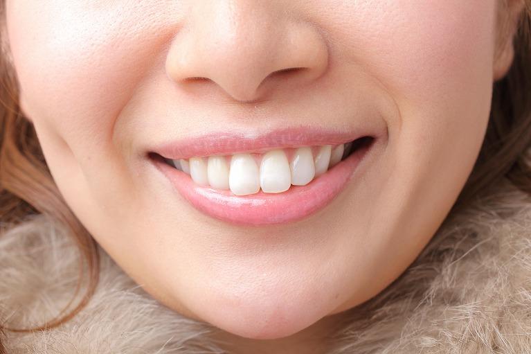 前歯だけを矯正したい方