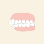 出っ歯の部分矯正