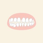 すきっ歯の部分矯正